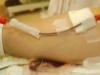 (針注意!)本採血中の右腕